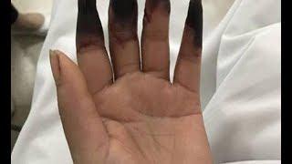 تحوّلت أصابع هذه المرأة إلى اللون الأسود بسبب غرغرينا.. لا تهمل هذه الأعراض !