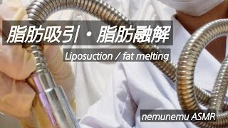ロールプレイ 脂肪吸引・融解 Liposuction / fat melting   roleplaying   ASMR latex gloves ゴム手袋