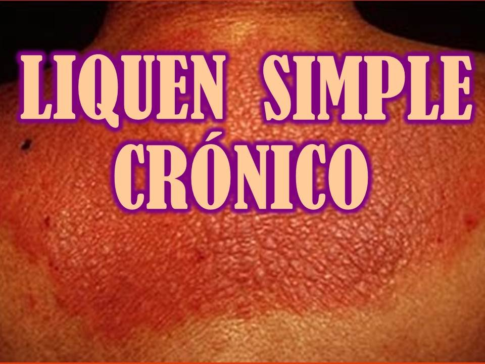Liquen simple cronico