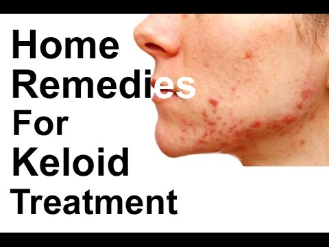 11 Home Remedies For Keloid Treatment Keloid Removal Keloid On