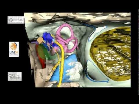 anatomie 3D de l'os temporal - vue d'ensemble