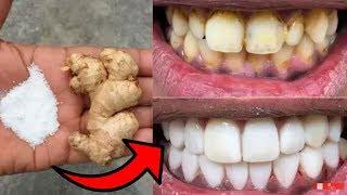 Just 2 Minutes Teeth Natural clean Tips  || Lemon