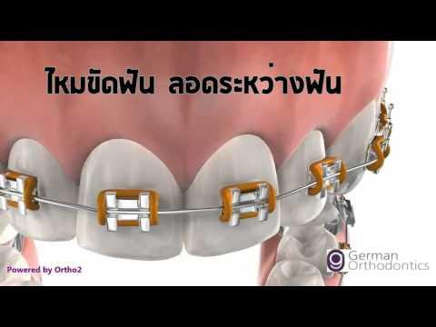 การดูแลฟันระหว่างจัดฟัน  พนัสนิคม ชลบุรี คลินิกทันตกรรมเอสซี