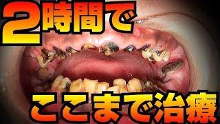 重度虫歯2時間でここまで治療【dentistry】【歯科治療 歯科医】(2小時內就能完成這些治療)