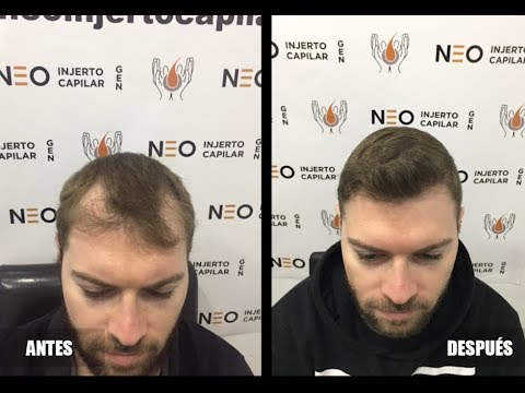 Trasplante de pelo en Zaragoza, Madrid y Barcelona/ Antes y después