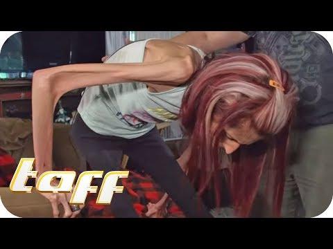18kg-Frau! Rachaels Langer Kampf Gegen Die Magersucht!   Taff   ProSieben