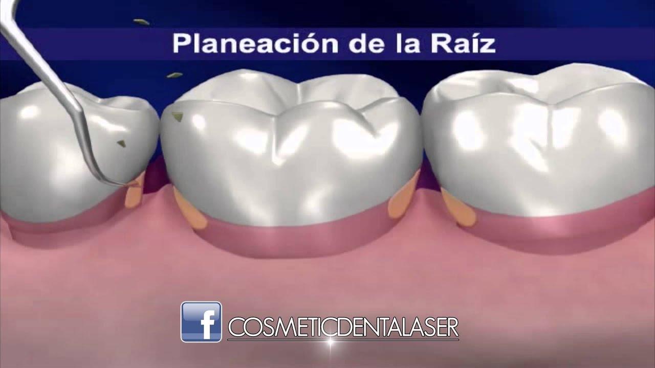 periodontitis crónica prevalencia de diabetes
