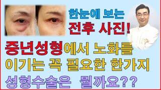 얼굴노화를 이기는 중년에서 꼭 필요한 수술 한가지는?-…