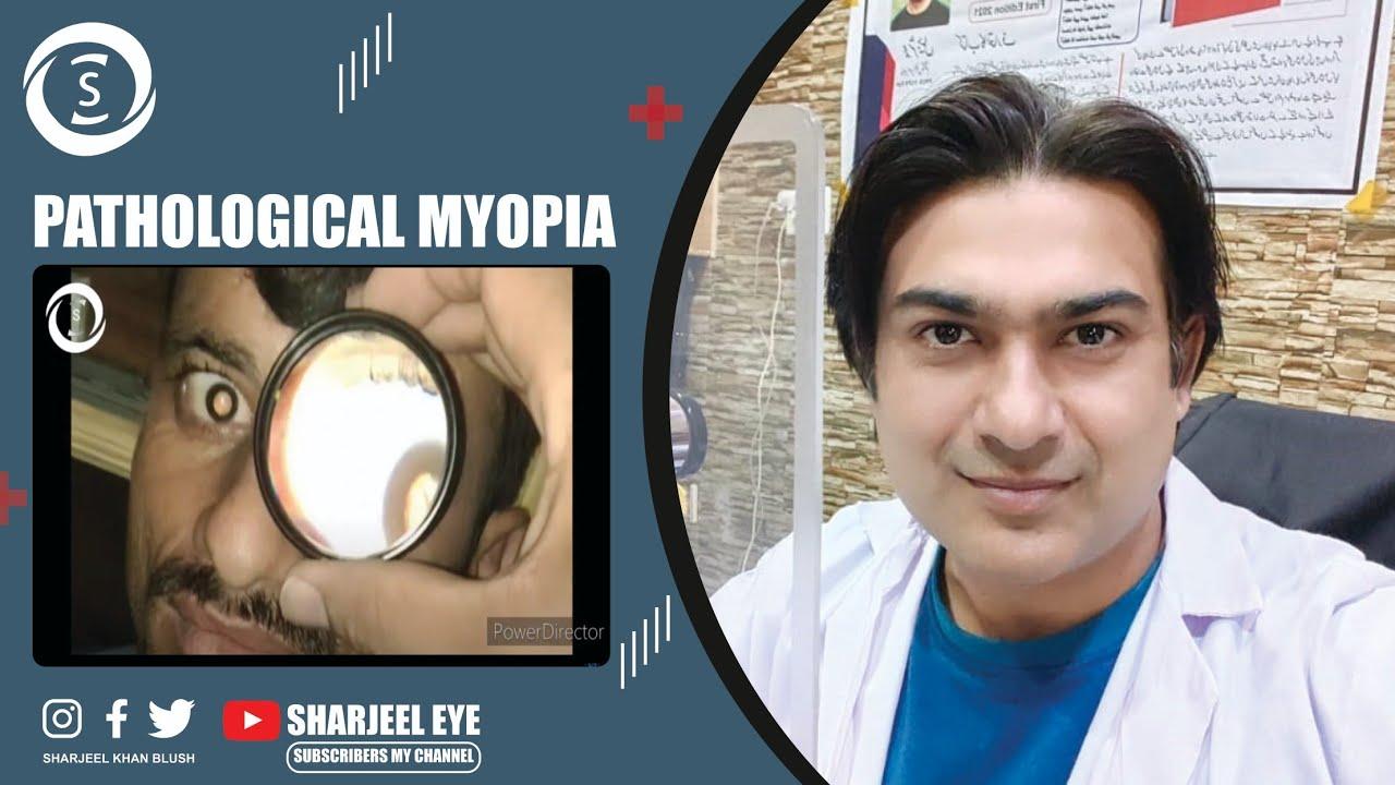 A bajuszos látás helyreállítása. Távollátó szem képzés. Hypermetropia