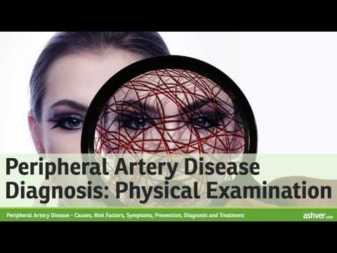 Peripheral Artery Disease - Causes, Risk Factors, Symptoms, Prevention, Diagnosis and Treatment
