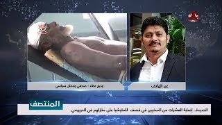 الحديدة .. إصابة العشرات من المدنيين في قصف للميشيا على منازلهم في الدريهمي    مع وديع عطا