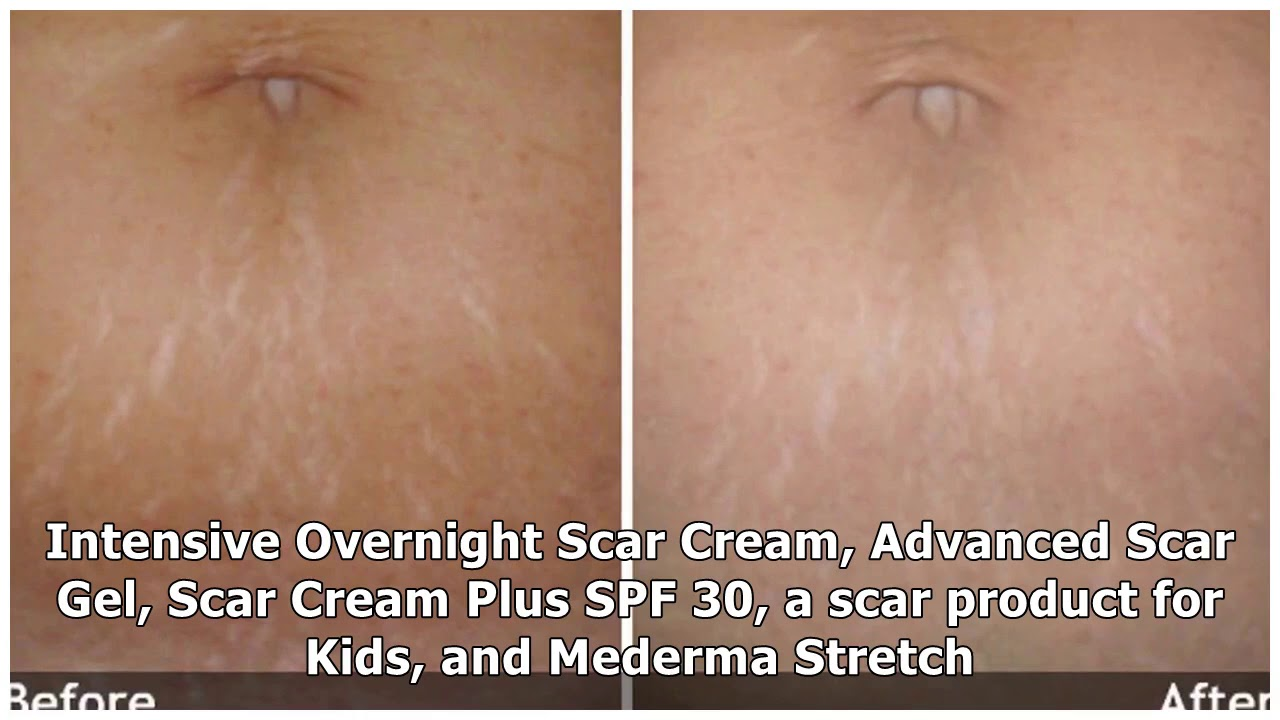The Truth About Mederma Stretch Marks Therapy Does It Work Youtube