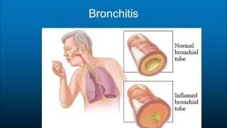 Lung diseases movie