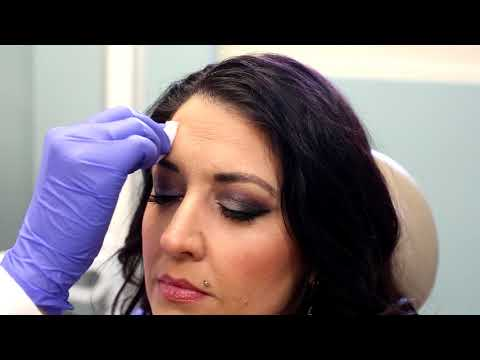 Carilion Cosmetic Center Botox Before and After