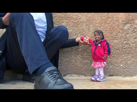 10 World's Smallest People You Won't Believe Exist