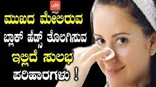 ಮುಖದ ಮೇಲಿರುವ ಬ್ಲಾಕ್ ಹೆಡ್ಸ್ ತೊಲಗಿಸುವ ಇಲ್ಲಿದೆ ಸುಲಭ ಪರಿಹಾರಗಳು! | Beauty Tips in Kannada | YOYOTVKannada