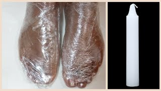 In Just 5 Minutes - Get Rid of CRACKED HEELS Permanently  Magical Cracked Heels Wax Treatment