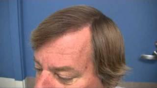Toronto Hair Transplant - 1.800.859.2266
