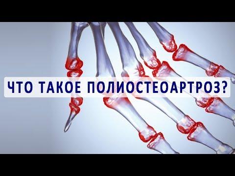 Классификация болезней суставов. Артрит. Артроз