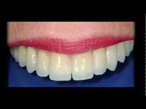 Protesis dentales fijas precios en costa rica