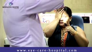 Corneal Transplant Surgery in Delhi | Glaucoma Laser Surgery | After Surgery Patients experience