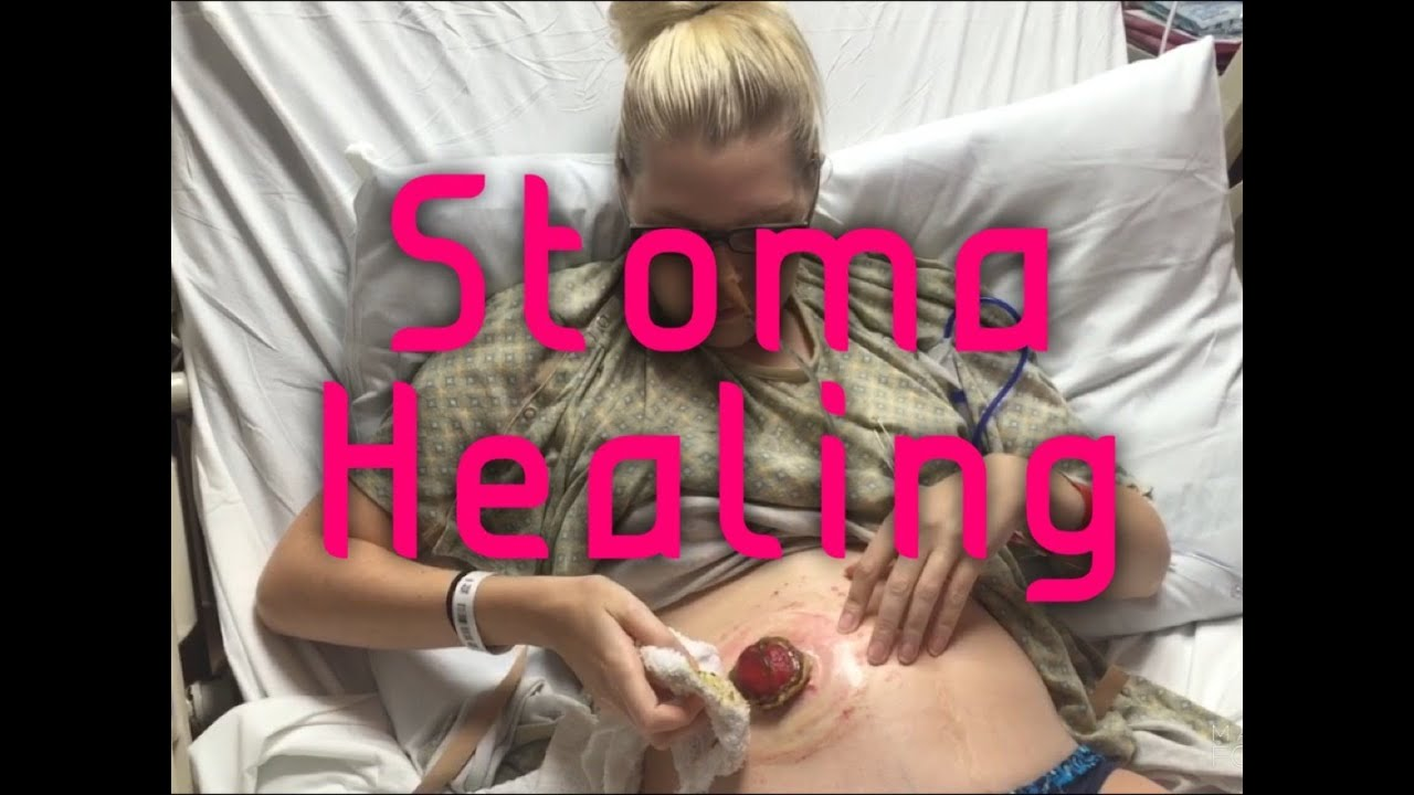 Sex and pregnancy with a stoma