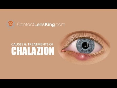 Chalazion | Causes, Treatment and Surgery