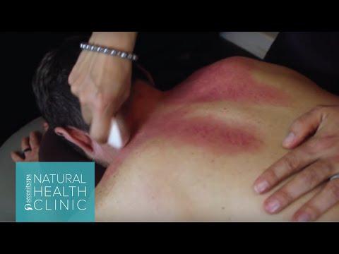 Acupuncture: Gua Sha