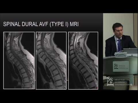 Spinal Vascular Malformations - Stephen Monteith, MD
