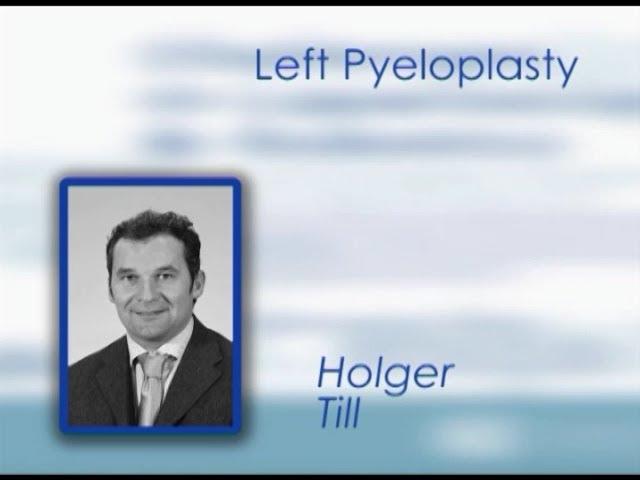 CILR 2011 - Holger Till - Left pyeloplasty