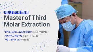 Master of Third Molar Extraction - Introduction [#Dentalbean]
