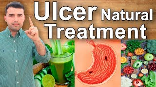 ... gastritis ulcers can heal naturally. to achieve this, you n...
