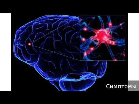 Симптоматическая эпилепсия. Как лечить симптоматическую эпилепсию.