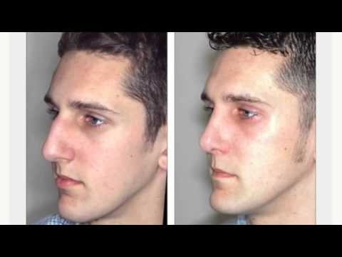 (215) 458-2218 Nose Job Prices Philadelphia PA   Rhinoplasty Surgery Prices Pennsylvania