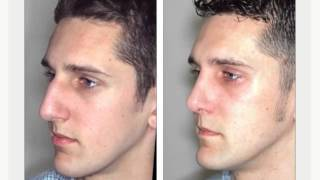 (215) 458-2218 Nose Job Prices Philadelphia PA | Rhinoplasty Surgery Prices Pennsylvania