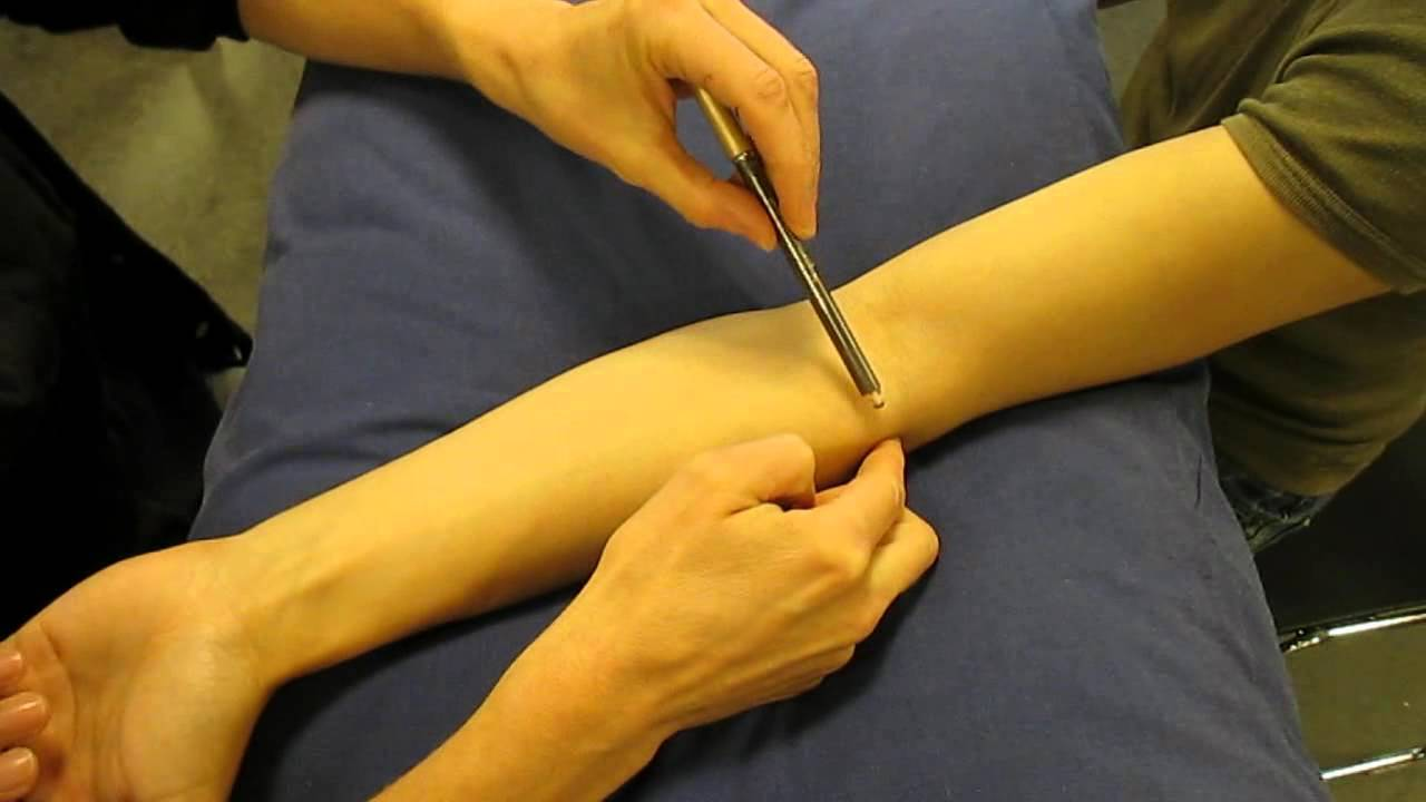 Surface Anatomy: Elbow Joint Line - YouTube