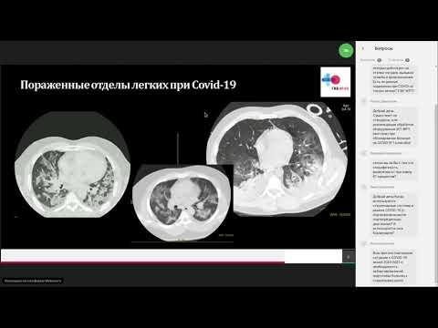 Рентгенография при COVID-19. Опыт ГКБ №40 ДЗМ (Коммунарка)