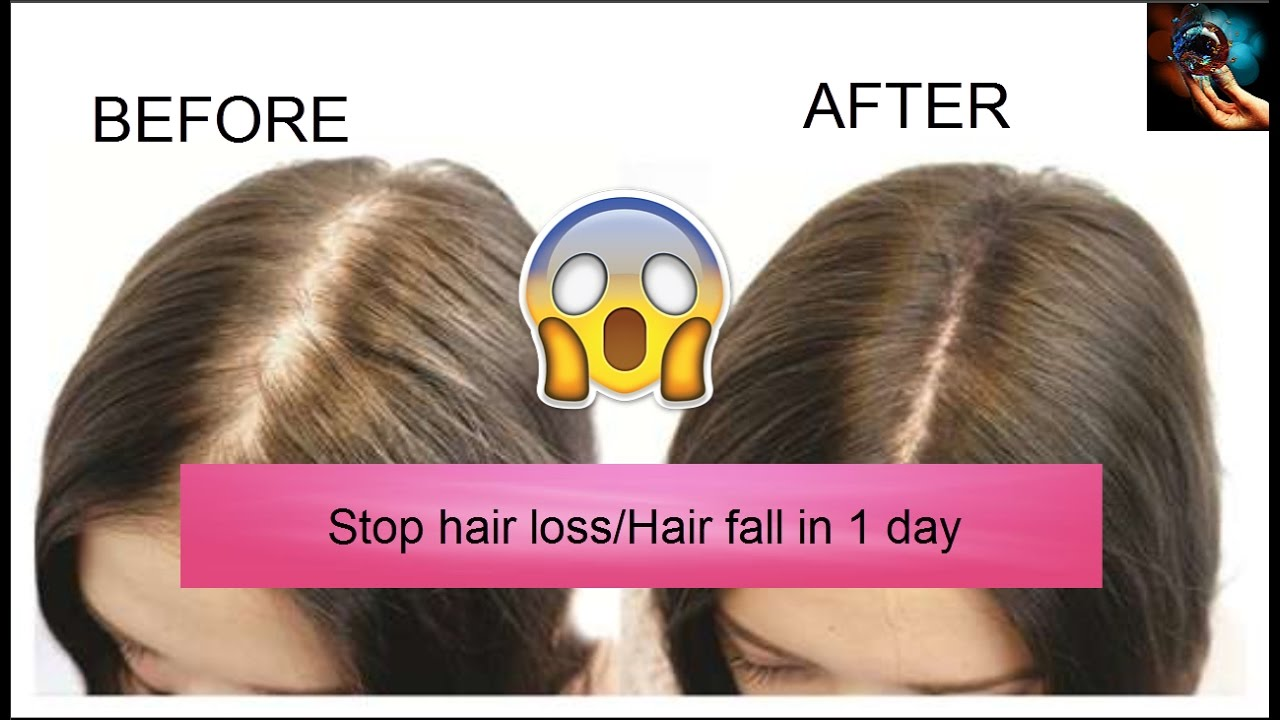 Image result for How to Stop Hair Loss