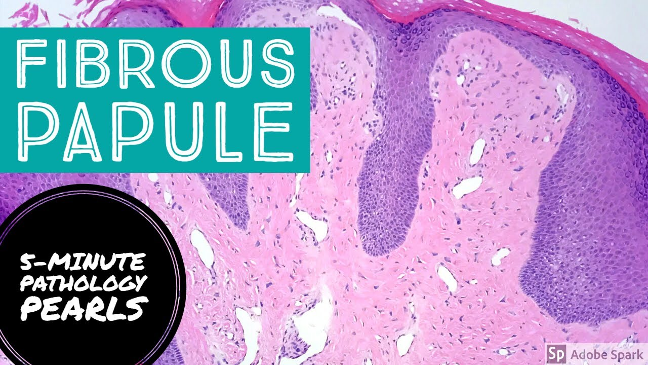 Fibrous Papule  Angiofibroma   5