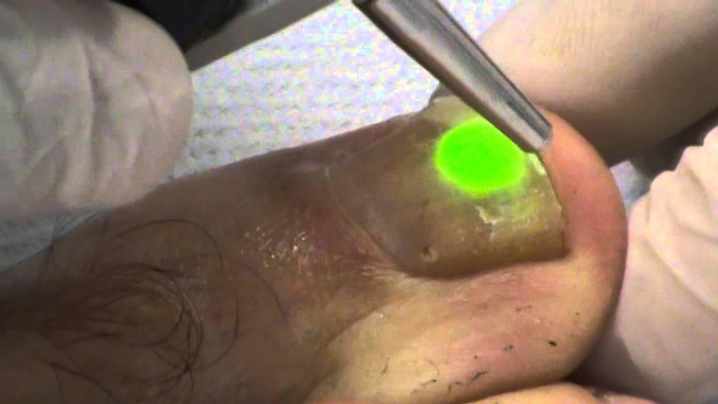 Врач который лечит тромбоциты