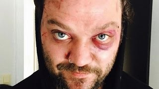 Download The Real Reason We Don't Hear From Bam Margera Anymore Mp3 and Videos