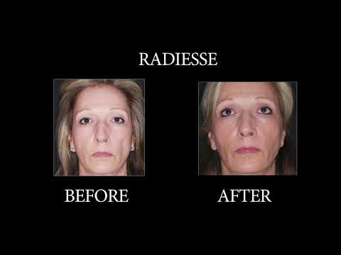 NYC Radiesse before and after