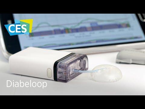[Interview] Diabeloop - Gestion Automatisée  Du Diabète De Type 1