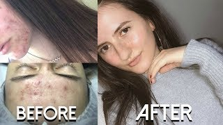 How I Got Rid Of Adult Acne!!! (MIRACLE PRODUCT NO JOKES)
