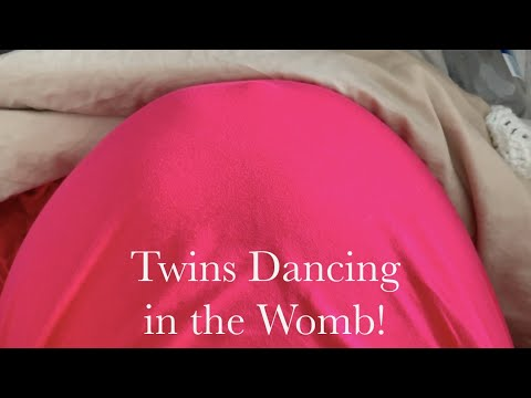 Twins Dancing in the Womb!