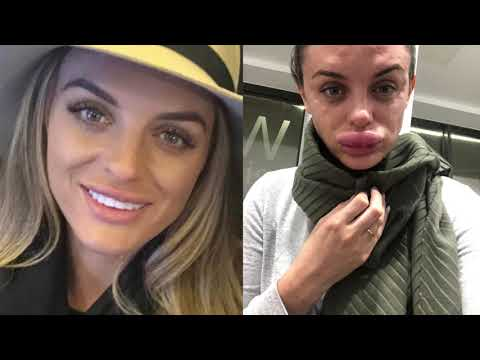 Cover Lagu Woman's Lips Grow Massively After Bad Lip Injections - Before and After stafamp3