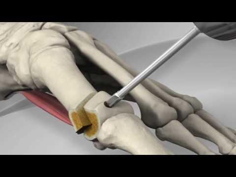 First Metatarsal Distal Chevron Osteotomy with Arthrex® LPS Screw