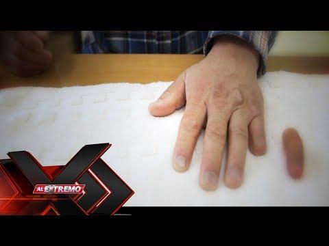 Extraño trastorno; 'La mano ajena' | Al Extremo