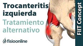 Trocanteritis izquierda - Visión desde la fisioterapia y la medicina natural