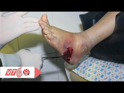 Biến chứng bàn chân của bệnh tiểu đường | VTC